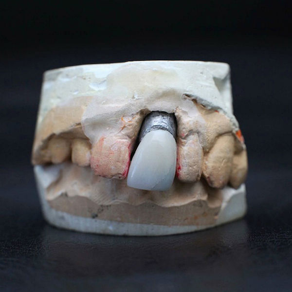 Elvis Presley's tooth