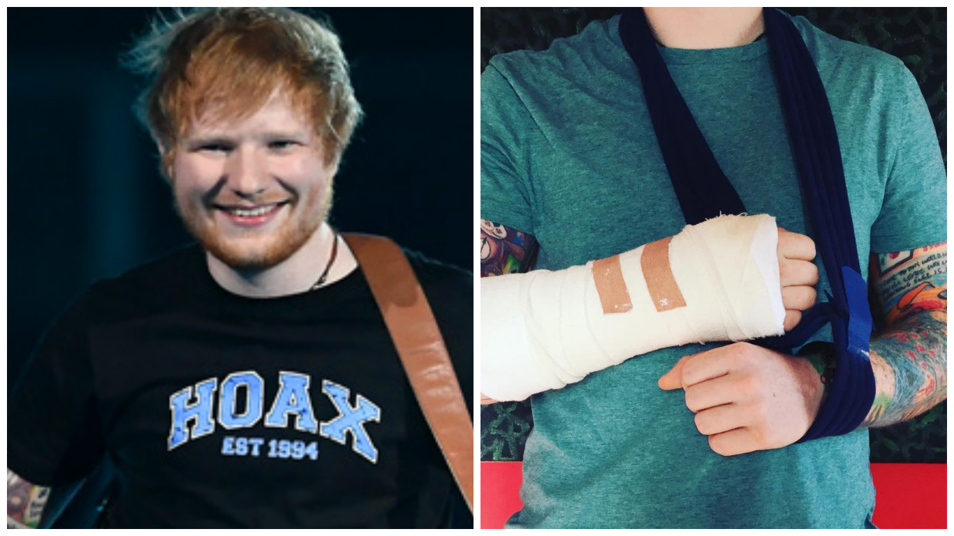 Ed Sheeran / broken arm