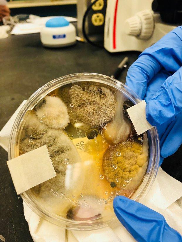 Hand dryer fungus